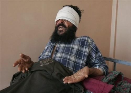Sayed Ghulam menceritakan kepada media bagaimana kedua-dua biji matanya dicungkil oleh penyerang bersenjata di selatan Afghanistan, semalam.