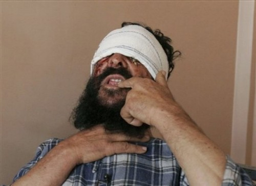 Afghan Sayed Ghulam speaks during an interview with The Associated Press at a hospital in the city of Kandahar, south of Kabul, Afghanistan, Sunday, Oct. 26, 2008. Ghulam said armed assailants attacked him and gouged out his eyes in front of his family in an attack in southern Afghanistan, officials said Sunday.