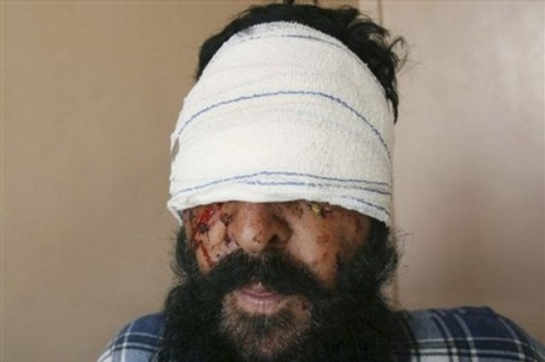 Sayed Ghulam, an Afghan farmer, is seen during an interview with The Associated Press at a hospital in the city of Kandahar, south of Kabul, Afghanistan, Sunday, Oct. 26, 2008. Ghulam said armed assailants attacked him and gouged out his eyes in front of his family in an attack in southern Afghanistan, officials said Sunday.