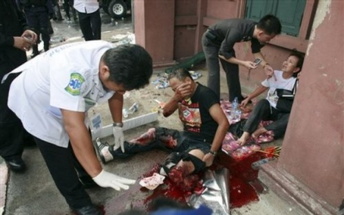 A seriously injured anti-government protester is attended to by medical personal after an explosion blew off his lower left leg during clashes with Thai police in front of parliament in Bangkok, Thailand, on Tuesday, Oct. 7, 2008. The exact source of the explosion was not immediately known.