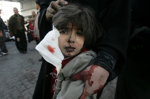 A wounded child awaits medical attention at the Shifa hospital on December 27, 2008 in Gaza City, Gaza. Israel's air force fired about 30 missiles at targets along the Gaza Strip on Saturday, destroying several Hamas police compounds, killing more than 155 people and wounding hundreds.  (Photo by Abid Katib/Getty Images)