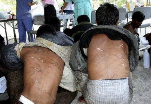 Rohingya migrants show their wounds while waiting for treatment at the provincial hospital in Ranong province, southern Thailand, Tuesday, Jan. 27, 2009. A new boatload of the 78 ethnic Rohingya migrants was detained in Thailand, several with lacerations, burns and other wounds they said were inflicted by Myanmar soldiers, Thai authorities said. (AP Photo)
