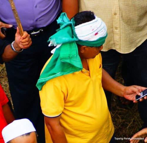 Pemuda PAS ini juga cedera teruk di kepala kerana lontaran batu dari penyokong -penyokong UMNO di peti undi Perial